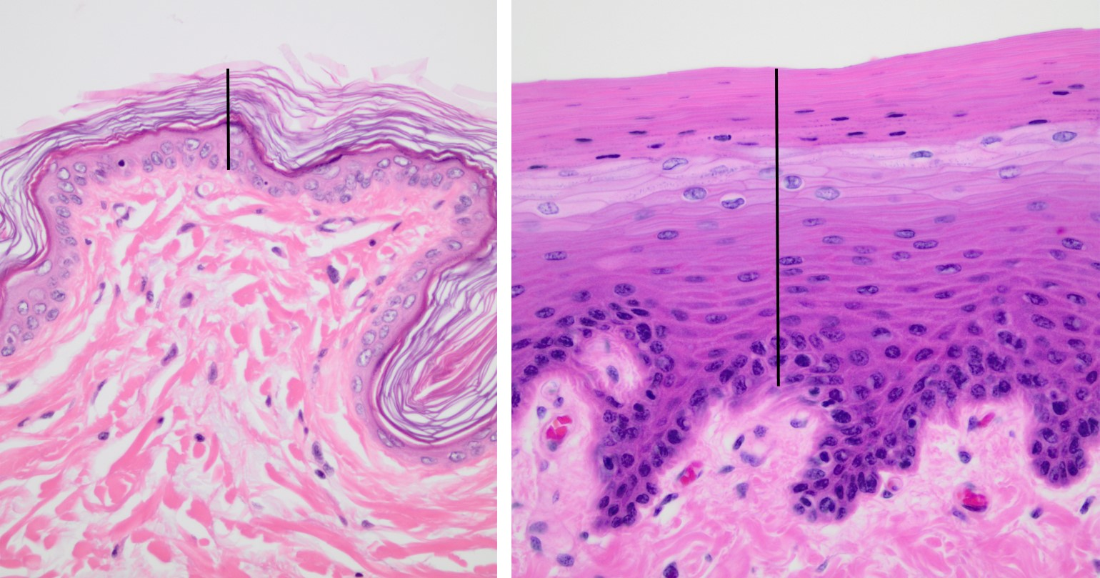 Structure Of The Epidermis Veterinary Histology