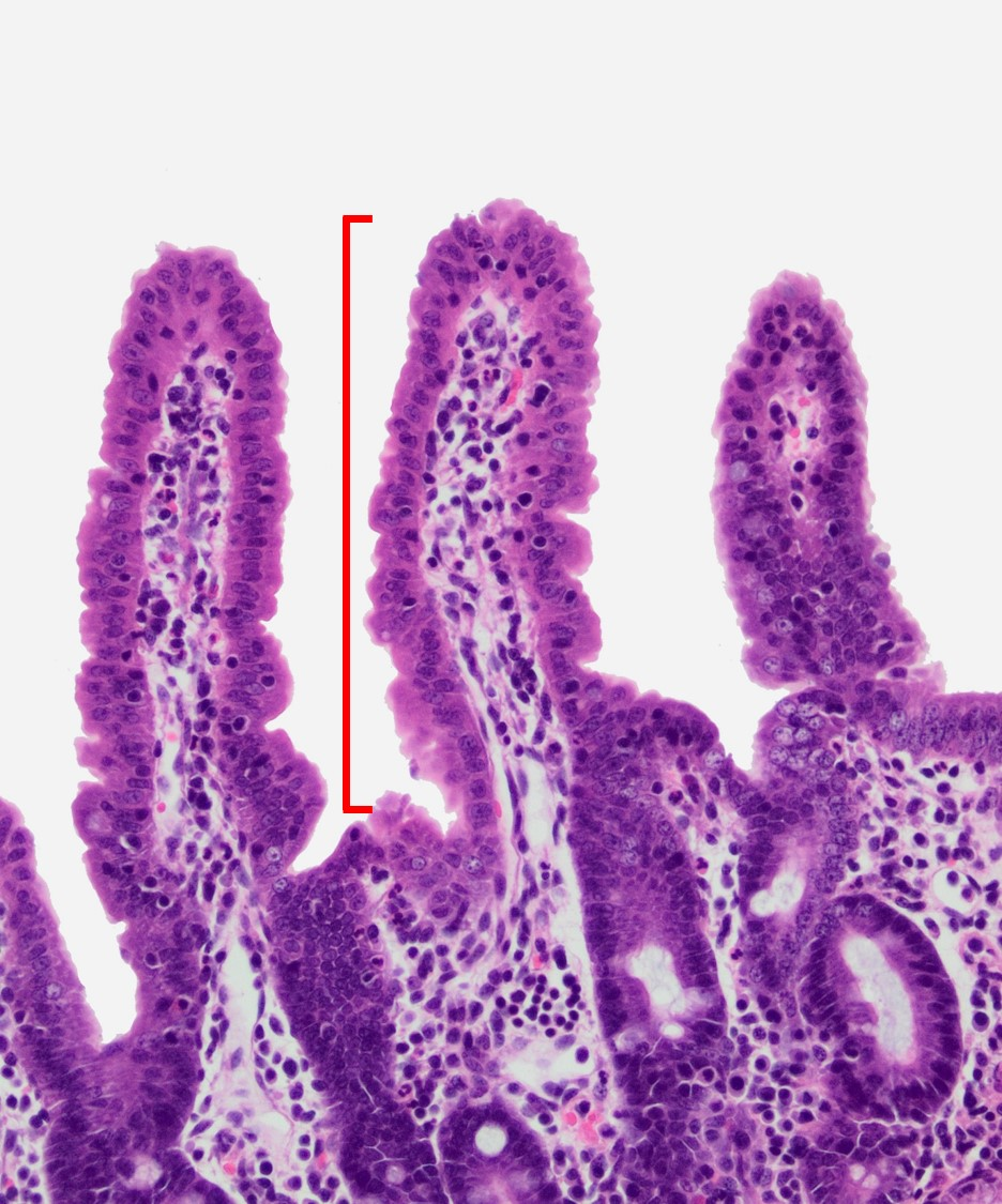 Small Intestine Veterinary Histology