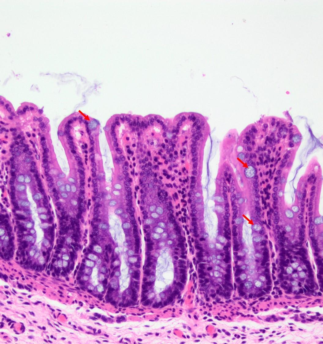 cecum and large intestine veterinary histology