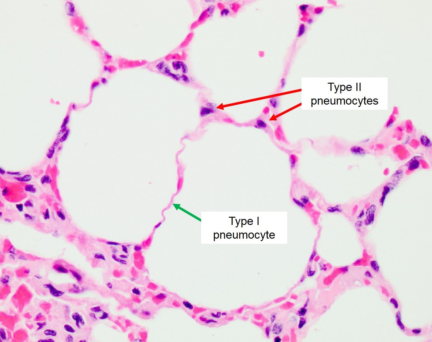 Gas Exchange Alveoli Veterinary Histology