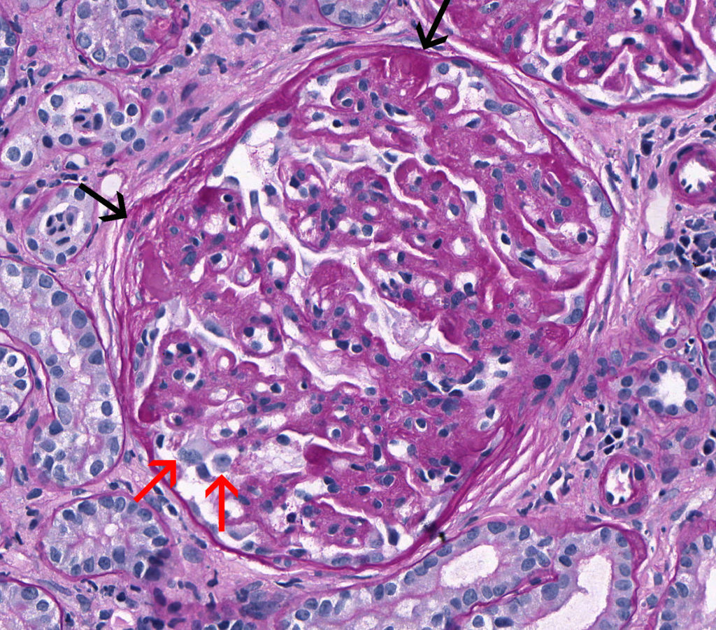 Membranoproliferative Glomerulonephritis Atlas Of Renal