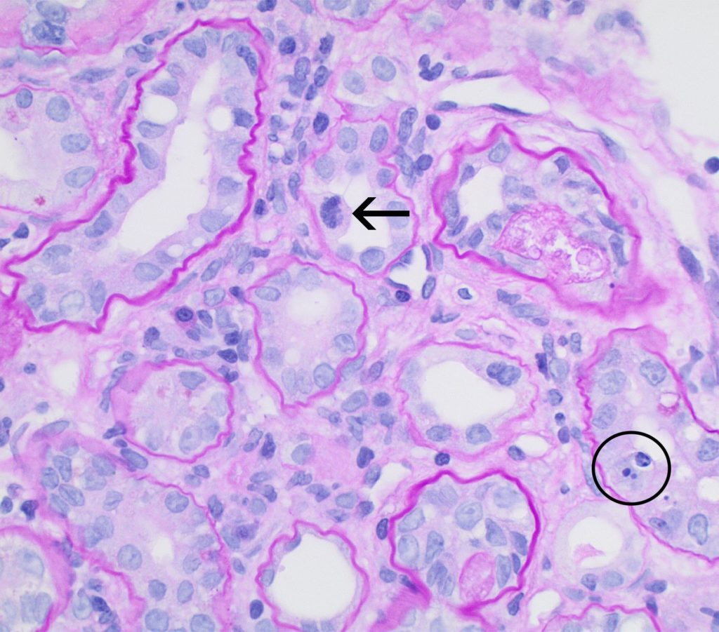Tubular, Interstitial And Vascular Pathology Seen With